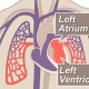 Heart formation